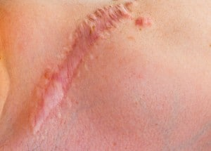 Personal Injury Damages for Scarring and Disfigurement