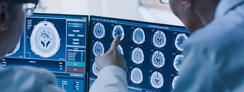 Delaware Traumatic Brain Injury Attorneys